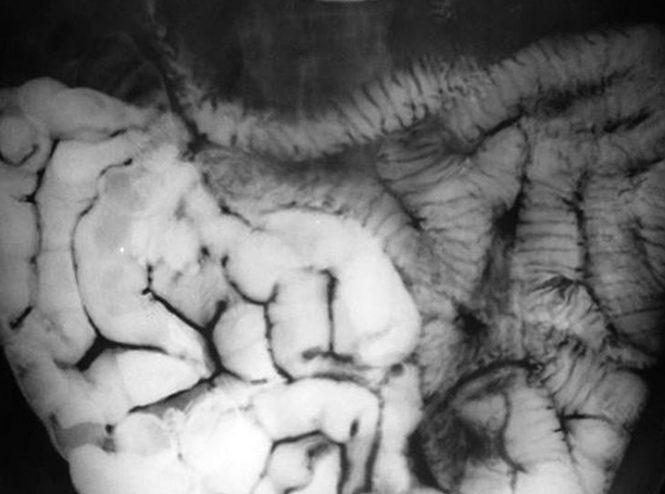 رادیولوژی SBFT